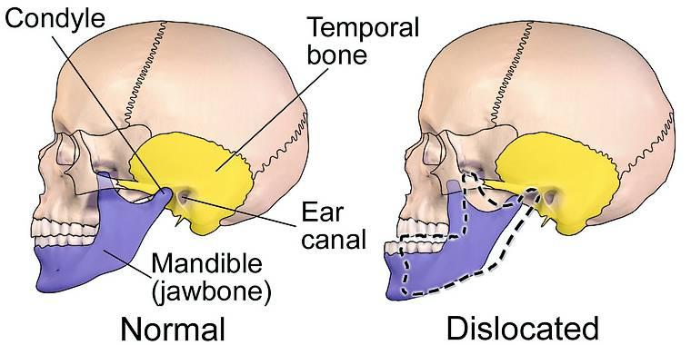 Temporomandibular joint illustration